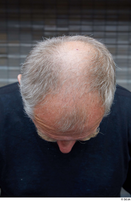 Head Hair Man White Casual Average Bald Street photo references