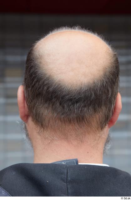 Head Hair Man White Casual Average Bald Street photo references
