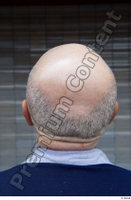 Street  664 bald hair head 0002.jpg