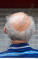 Street  675 bald hair head 0001.jpg