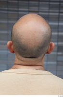 Street  692 bald hair head 0001.jpg